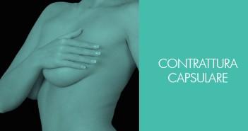 Contrattura capsulare