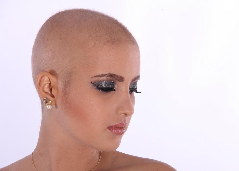 Chemioterapia  caduta e ricrescita dei capelli  Fraparentesi 284fec382a46