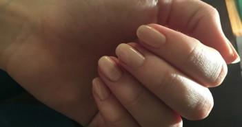 chemioterapia effetti collaterali unghie