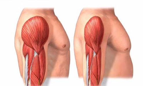 sarcopenia come si riduce il muscolo