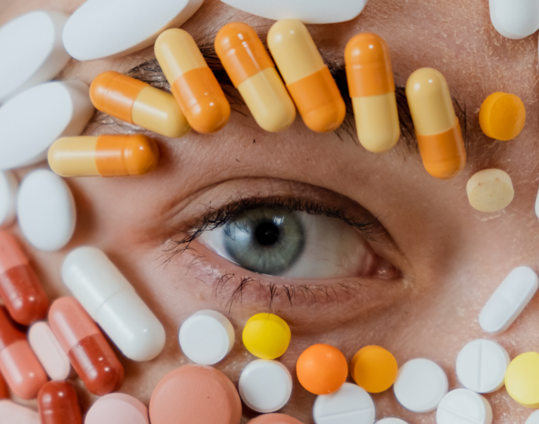 trucco occhiaie causate dalle terapie oncologiche