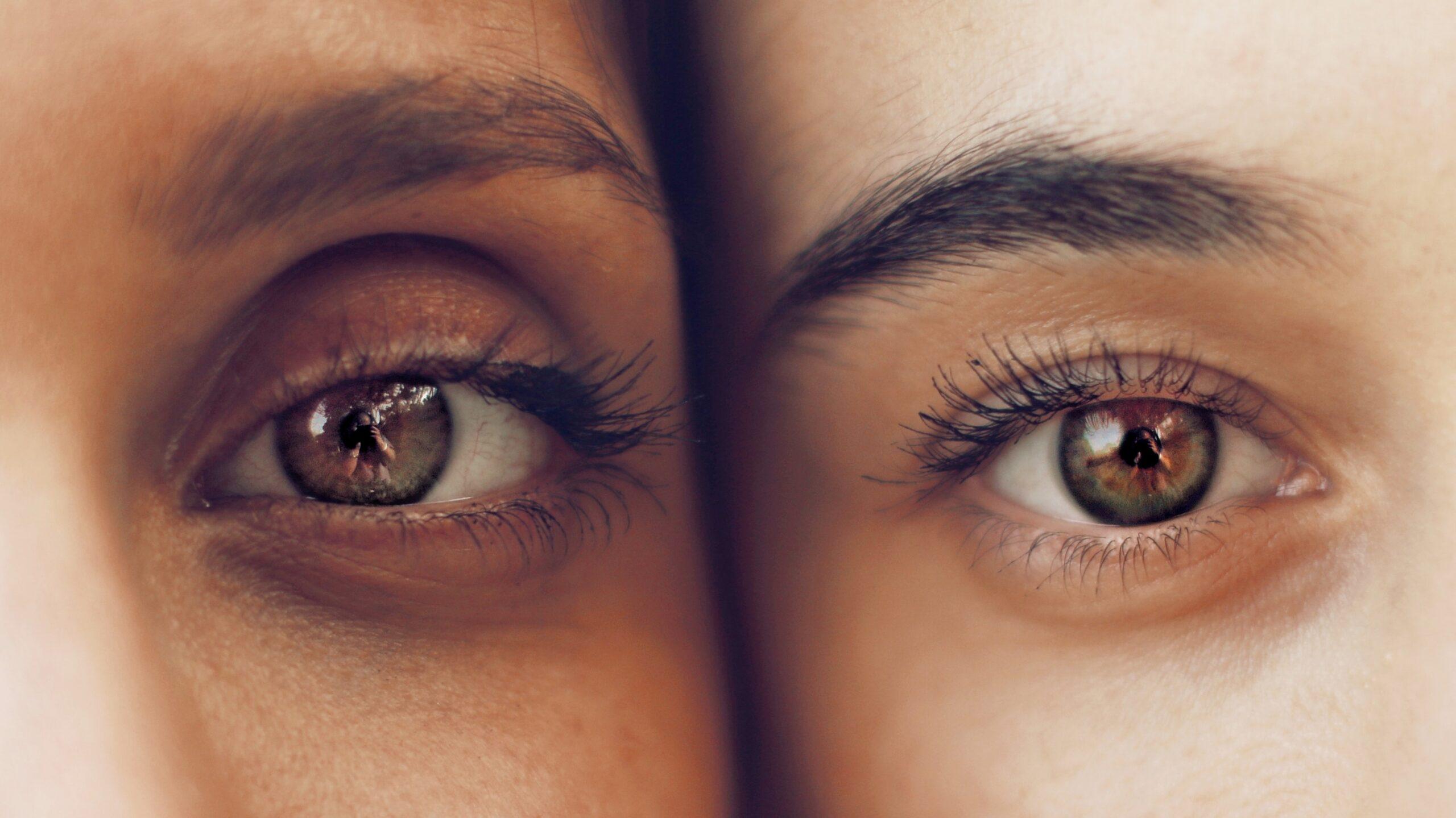 differenze fra occhiaie